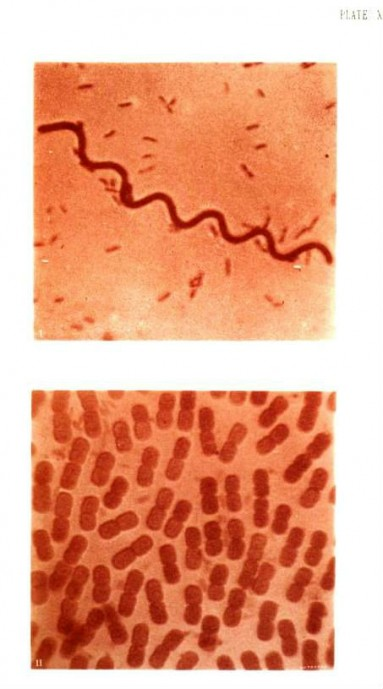 Photography of Bacteria 7