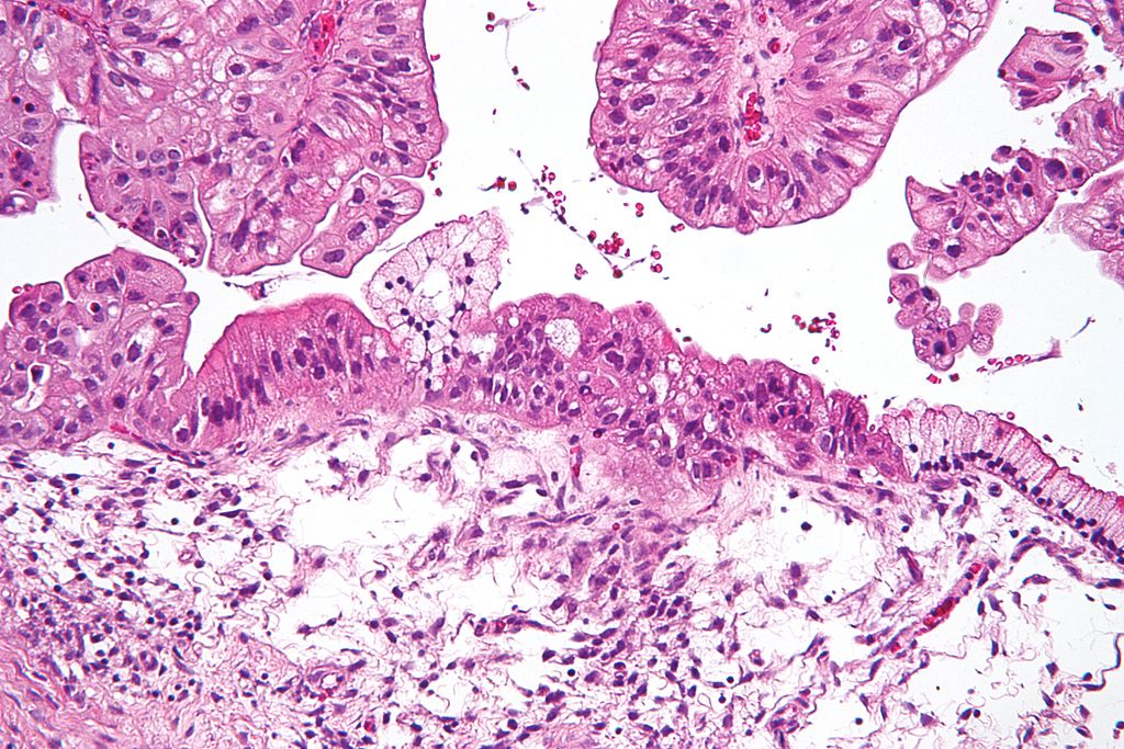 Micrograph of a mucinous ovarian carcinoma stained by H&E. (Wikimedia Commons | CC BY-SA 3.0)